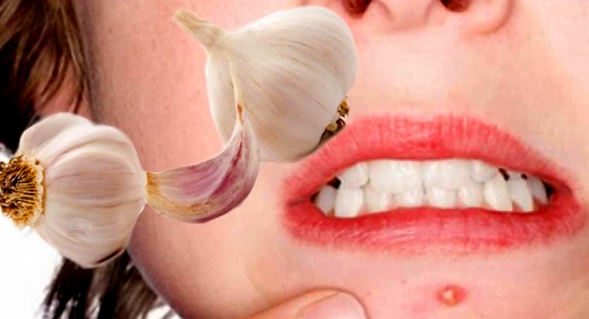 garlic beauty